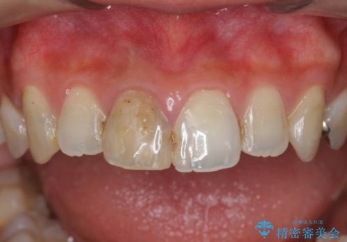前歯 審美セラミック治療の治療前