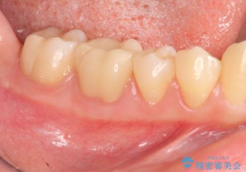 深い虫歯 神経の温存 セラミック治療の治療後