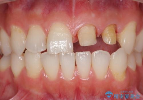 前歯 保険適応クラウンからジルコニアクラウンへのやりかえの治療中