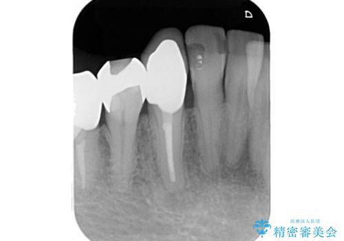 毎週薬を交換しているが、一向に治らず来院された症例(右下犬歯の根管治療:リトリートメント)の治療後
