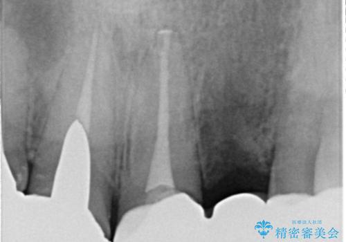 転勤する前に前歯を治したい 抜歯とセラミックブリッジの治療中