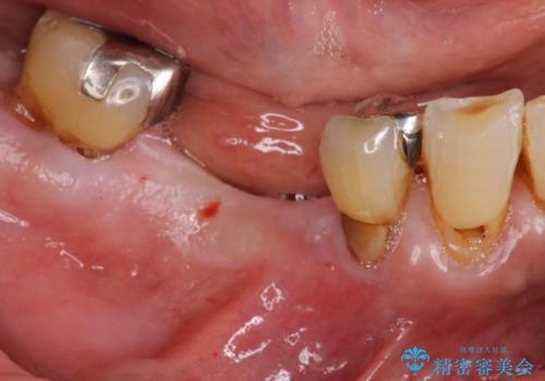 小矯正を伴う臼歯部インプラント補綴の治療前