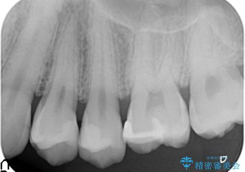 拡大鏡を用いたむし歯の治療。精度の高いセラミックインレーの治療後