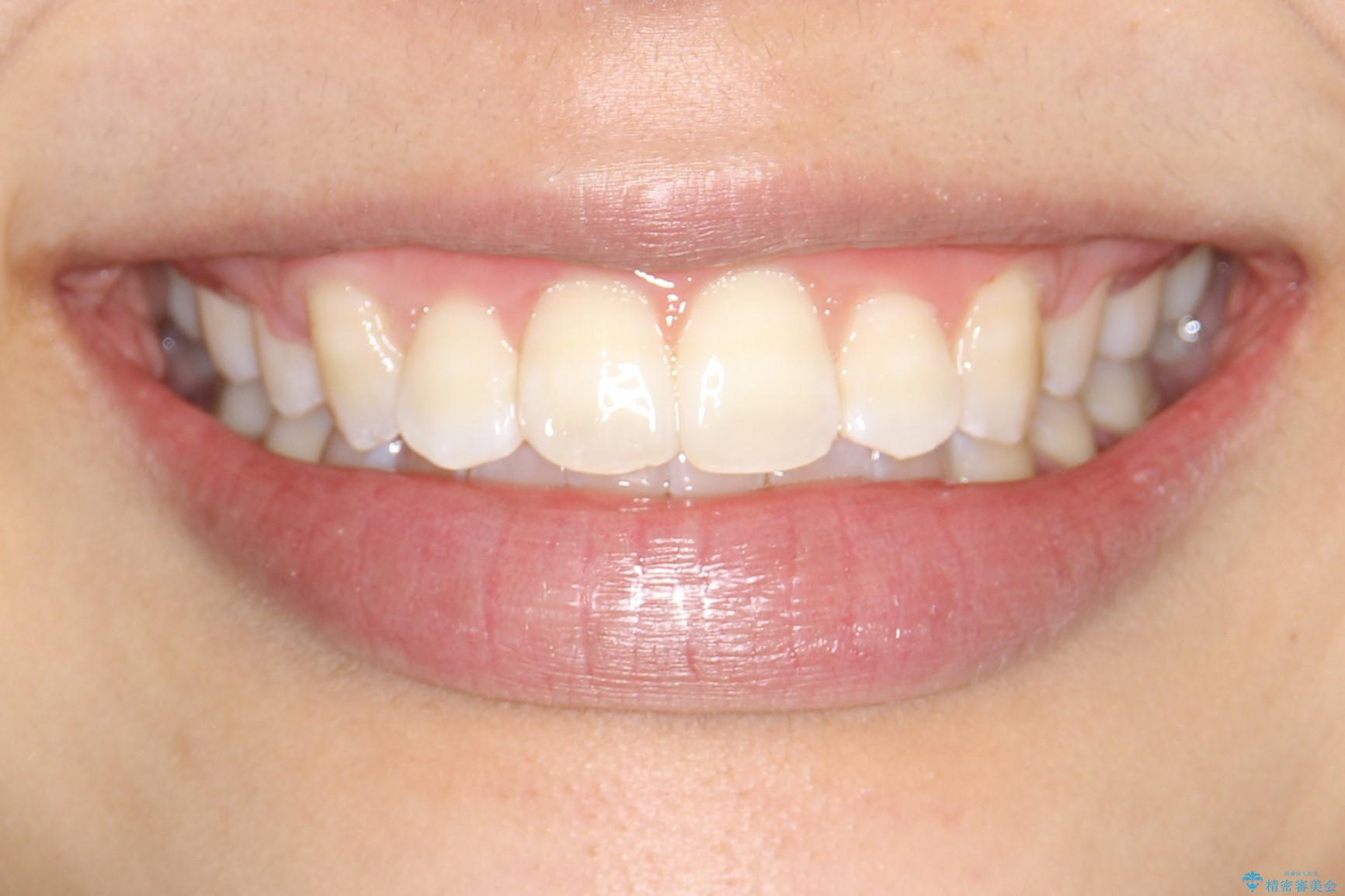 王道・従来のワイヤー矯正 表の装置で手早くきれいな歯並びをの治療後(顔貌)