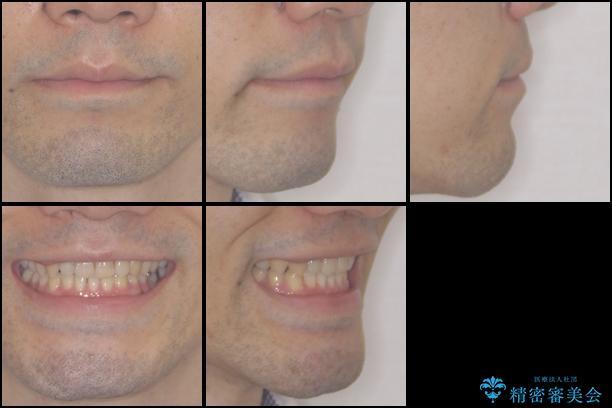 咬みにくい! インビザラインによる反対咬合の改善の治療後(顔貌)