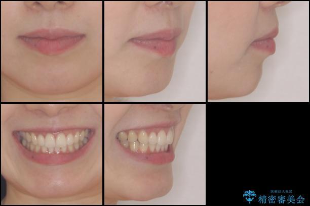 前歯のデコボコと出っ歯を治したい インビザラインによる非抜歯矯正治療の治療後(顔貌)
