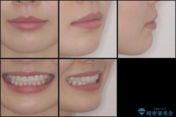 インビザライン・ライトによる前歯部叢生の改善の治療後(顔貌)