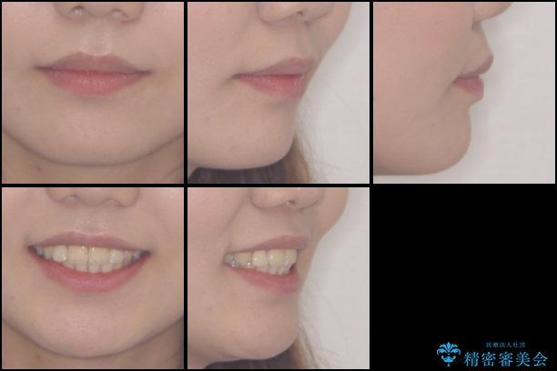 前歯の出っ歯とでこぼこ 目立たないワイヤーで抜歯矯正の治療後(顔貌)