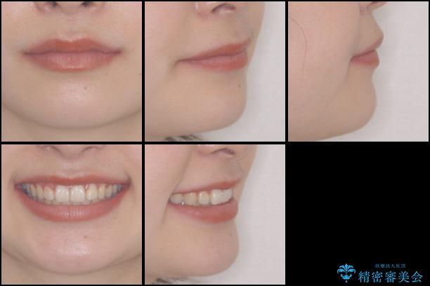 前歯を気にせず笑いたい インビザラインによる矯正治療の治療後(顔貌)
