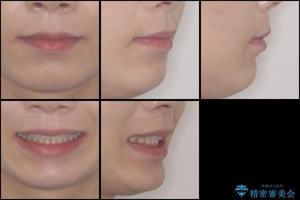 気になる出っ歯をインビザラインで改善の治療後(顔貌)
