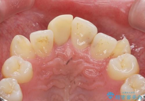 根管治療を含む前歯セラミック治療の治療前