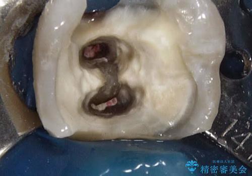 歯ぐきの深い位置まで虫歯が 歯周外科→被せもの による奥歯の治療の治療中