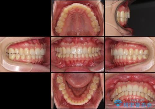 気になる出っ歯をインビザラインで改善の治療後