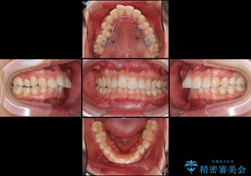 気になる出っ歯をインビザラインで改善の治療中