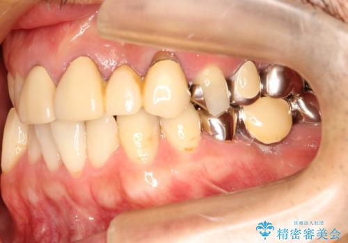 矯正治療・根管治療 被せものの製作 包括的な総合歯科治療による見た目の改善の治療前