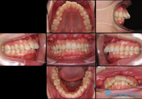 気になる出っ歯をインビザラインで改善の治療前
