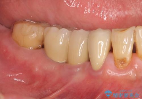 小矯正を伴う臼歯部インプラント補綴の症例 治療後