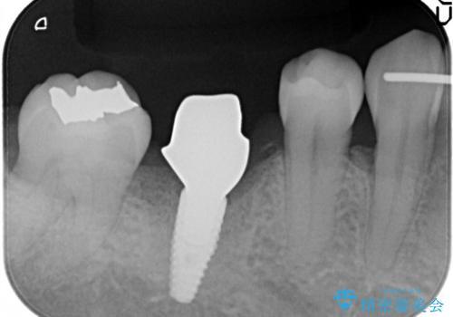しっかり噛める奥歯。インプラント治療の治療中