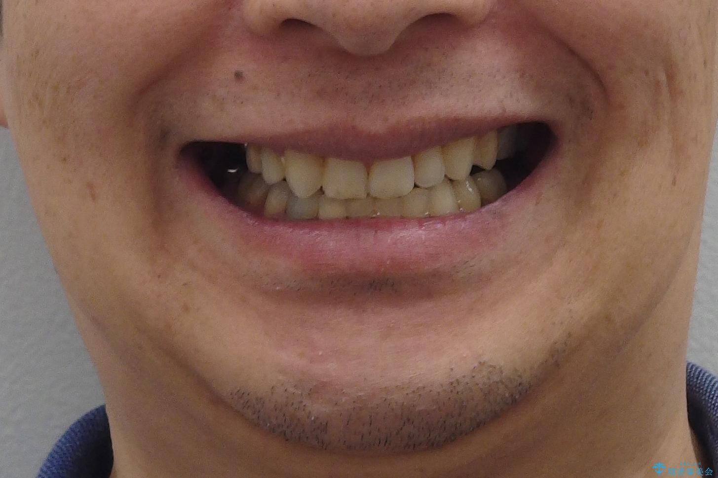 40代男性 総合歯科治療 矯正治療+虫歯治療の治療後(顔貌)