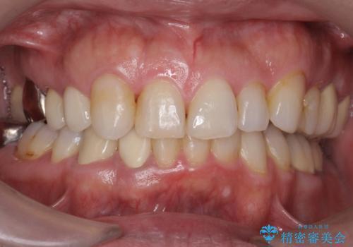 40代男性 総合歯科治療 矯正治療+虫歯治療の治療後