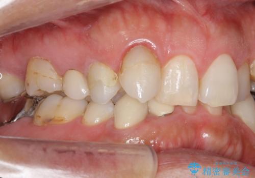 40代男性 総合歯科治療 矯正治療+虫歯治療の治療前