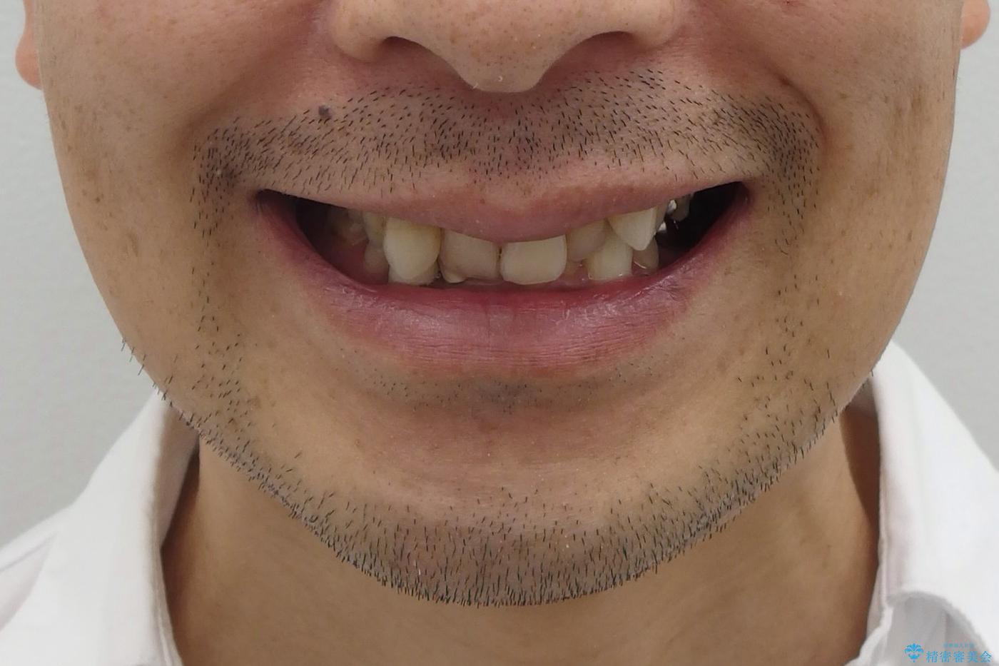 40代男性 総合歯科治療 矯正治療+虫歯治療の治療前(顔貌)