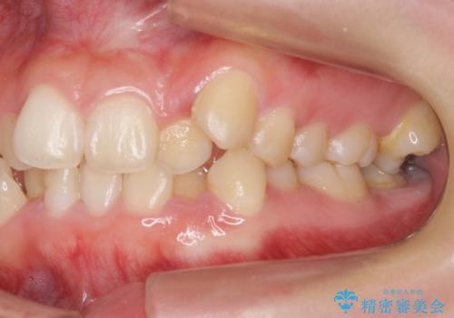 八重歯 奥歯のすれ違い ワイヤー矯正でしっかり治療の治療前