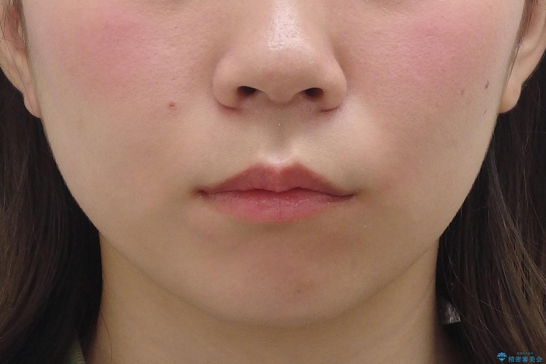 八重歯 奥歯のすれ違い ワイヤー矯正でしっかり治療の治療前(顔貌)