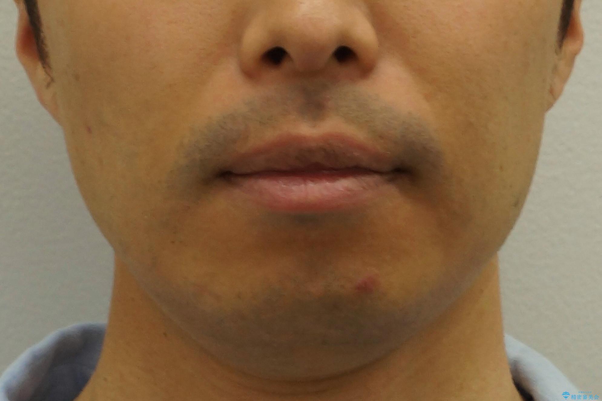 30代男性 歯を抜かないインビザライン 前歯のがたつきの治療の治療後(顔貌)