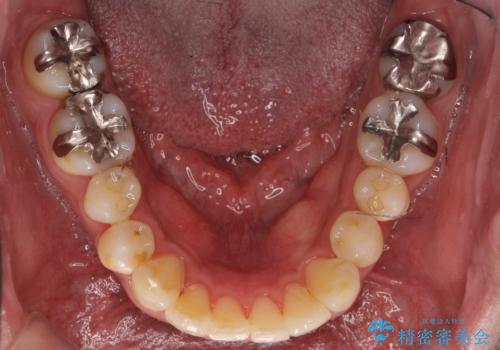 30代男性 歯を抜かないインビザライン 前歯のがたつきの治療の治療後