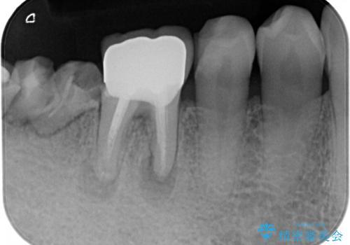 下の奥歯のインプラントと根管治療での咬合回復の治療前