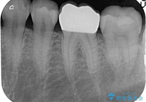 奥歯の精密虫歯治療の治療後