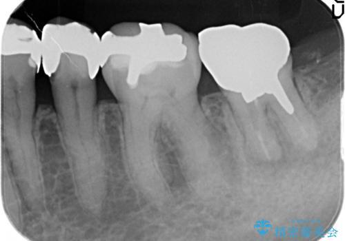 歯が欠けてしまった セラミッククラウンで治療の治療前