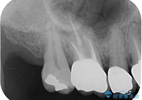 抜けたまま放置した奥歯 部分矯正やインプラントを用いた咬合回復の治療後