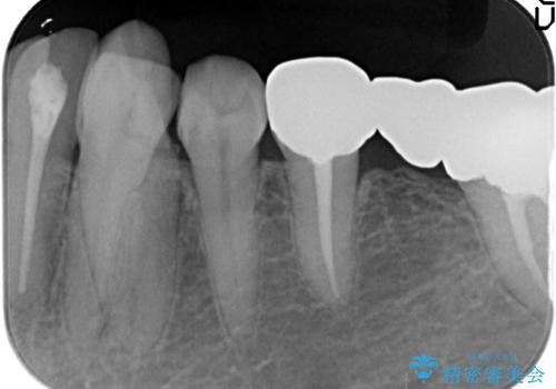 しみる歯の治療 セラミックインレーの治療前