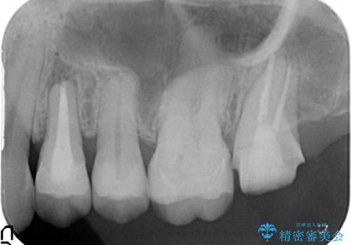 左上4番目の歯で咬むと痛むと来院された方のオールセラミッククラウンの治療後