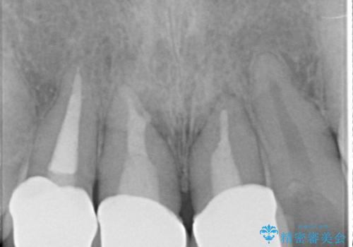オールセラミッククラウン 前歯を綺麗にしたいの治療後