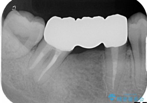 矯正治療・根管治療 被せものの製作 包括的な総合歯科治療による見た目の改善の治療後