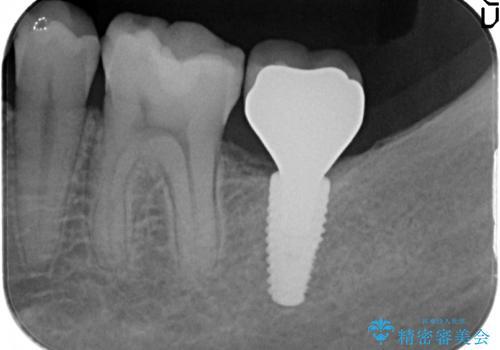 インプラント治療 虫歯で失った歯の補綴の治療後