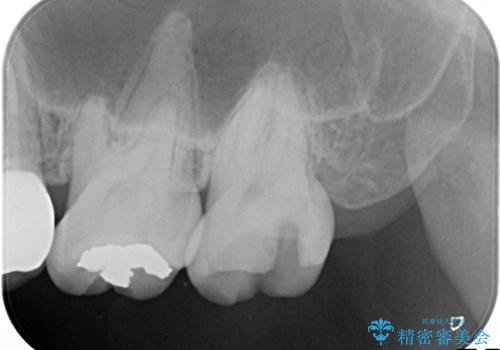 矯正後に、より美しい歯への治療前