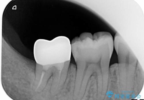 歯ぐきの深い位置まで虫歯が 歯周外科→被せもの による奥歯の治療の治療後