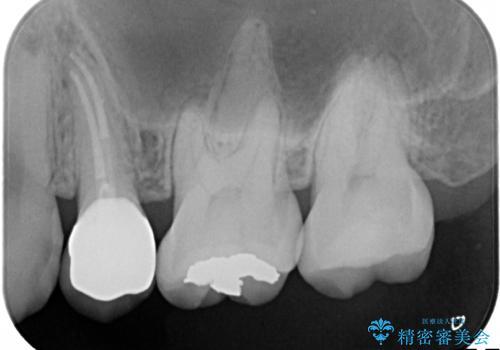 歯の神経の壊死による炎症への対応:湾曲根管を持つ左上4番の治療後