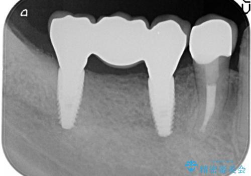 失った奥歯 インプラントブリッジ治療の治療後