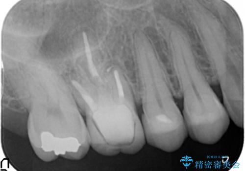 笑った時に見える銀歯を白くしたい 30代女性の治療後