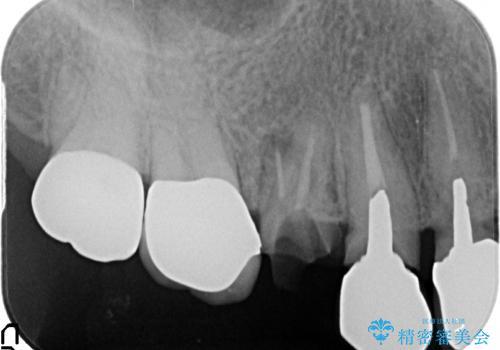 オールセラミッククラウン 土台ごと外れた歯の治療の治療前