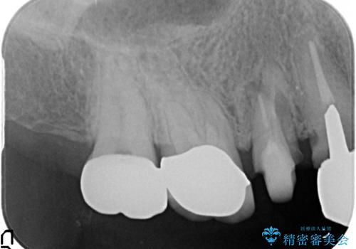 オールセラミッククラウン 土台ごと外れた歯の治療の治療中