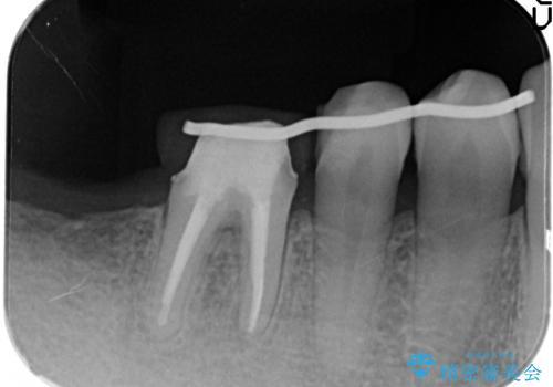 下の奥歯のインプラントと根管治療での咬合回復の治療中