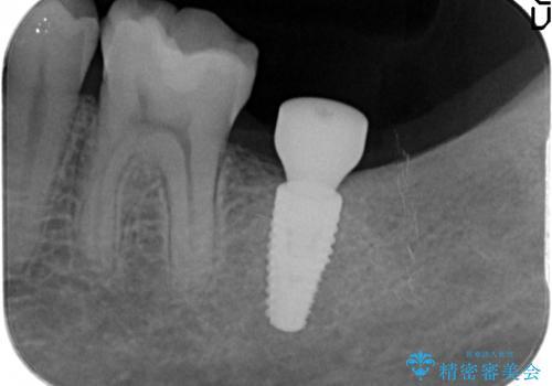 インプラント治療 虫歯で失った歯の補綴の治療中