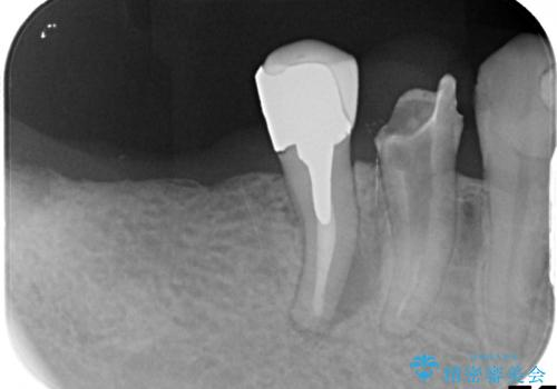 失った奥歯 インプラントブリッジ治療の治療前
