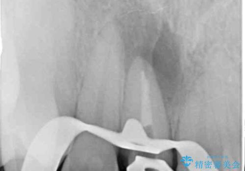 根管治療を含む前歯セラミック治療の治療中